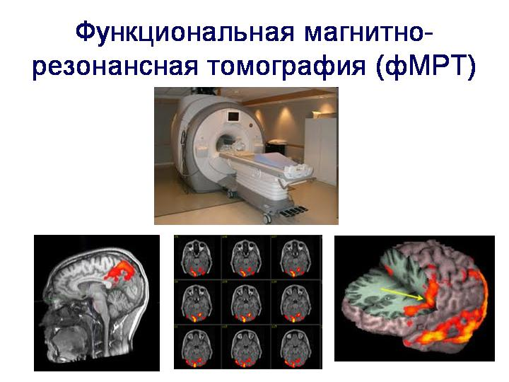 functional magnetic resonance imaging and spectroscopic